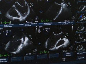 Ultraschallbilder können vom Arzt interpretiert werden.